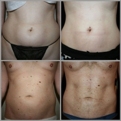 Non Surgical Liposuction in Tirap