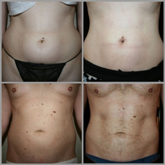 Non Surgical Liposuction in Middle East