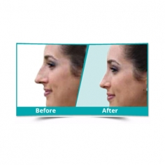 Nose Reshaping Surgery in Sikkim