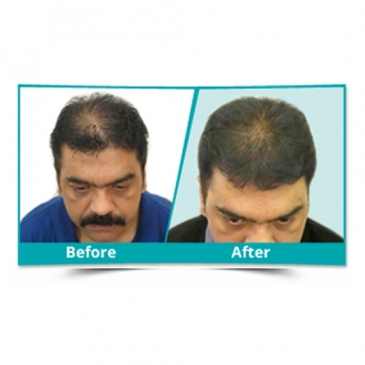 PRP Treatment in Bangalore