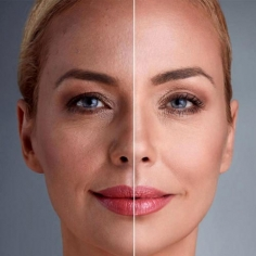 Photo Rejuvenation Treatment in Usa