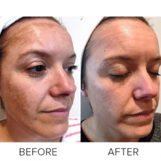 Pigmentation Treatment in International Airport