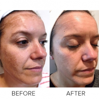 Pigmentation Treatment in Papum Pare