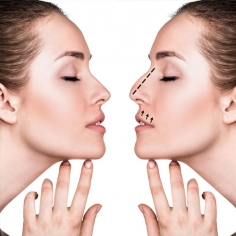 Reconstructive Cosmetic Surgery in Muzaffarpur