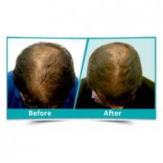 Scalp Rejuvenation Treatment in Morjim