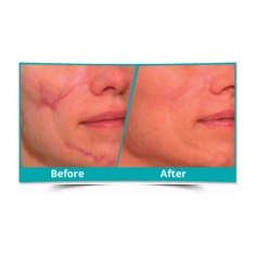 Scar Reduction Surgery in Usa