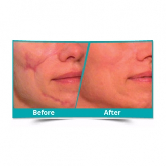 Scar Reduction Surgery in Lakhisarai