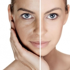 Skin Polishing Treatment in Japan