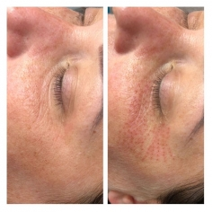 Skin Tightening Treatment in International Airport