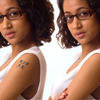 Tattoo Removal in Haryana