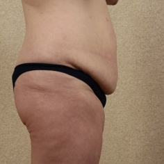 Tummy Tuck Cosmetic Surgery in Delhi