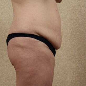 Tummy Tuck Cosmetic Surgery in Korea