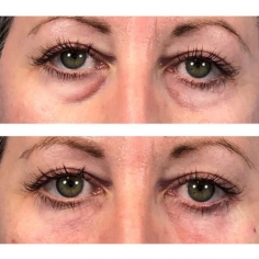 Under Eye Rejuvenation in Reis Magos