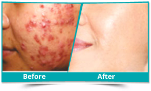 Jammu And Kashmir - Acne Management Result