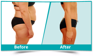 Hesaraghatta - Liposuction Result