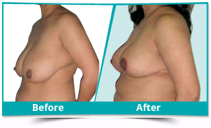 Middle East - Breast Reduction Lift Result