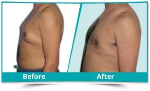 International Airport - Male Breast Reduction Result