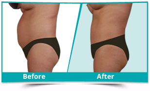 Korea - Tummy Tuck Result