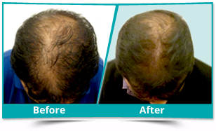 Japan - Scalp Rejuvenation Result