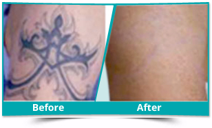 Delhi - Tattoo Removal Result