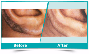 Dhalai - Laser Hair Removal Result