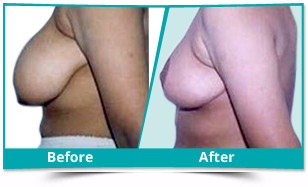 Dakshina Kannada - Breast Reduction Lift Result