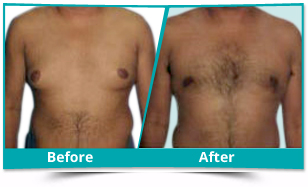 Kerala - Male Breast Reduction Result