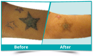 Candola - Tattoo Removal Result