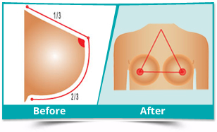Chirang - Breast Augmentation Result