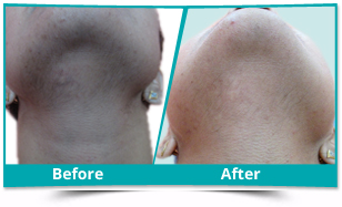 West Kameng - Laser Hair Removal Result