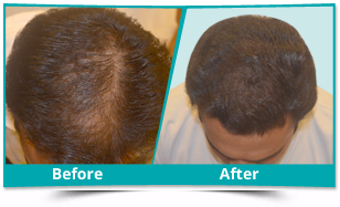 Manipur - Scalp Rejuvenation Result