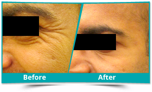 Pashchim Champaran - Anti Aging Fillers Result
