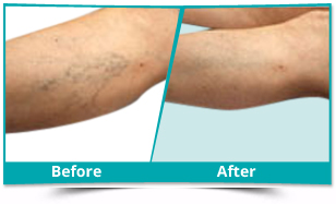 Bangalore - Dermatology Result