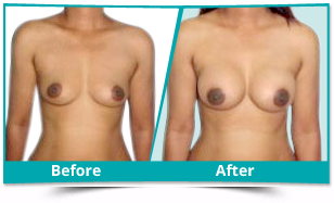 Dibang Valley - Breast Augmentation Result