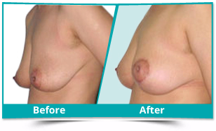 Odisha - Breast Reduction Lift Result