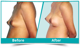 Kerala - Breast Augmentation Result