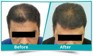 Middle East - Scalp Rejuvenation Result