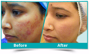 Una - Acne Management Result