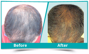 Candola - Scalp Rejuvenation Result