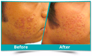 Chirang - Acne Management Result
