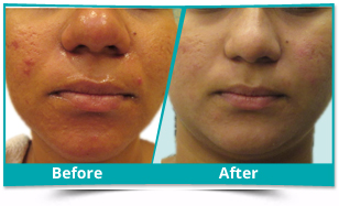 Middle East - Acne Management Result