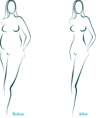 Dharmavaram - Liposuction Result