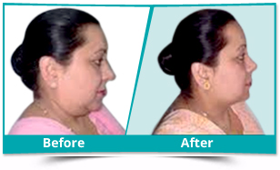 Manipur - Chin Surgery Result
