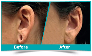Dhalai - Ear Lobe Repair Result