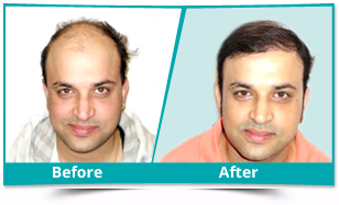 Assam - Hair Transplant Result