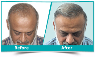 Lower Dibang Valley - FUE Hair Transplant Result