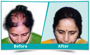 Nandyal - FUE Hair Transplant Result