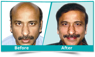 Dibang Valley - FUE Hair Transplant Result
