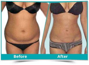 Katihar - Cosmetic Surgery Result